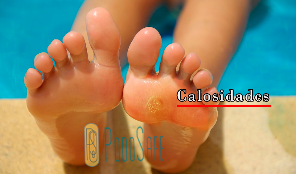 O que é bom para acabar com calos e calosidades dos pés?