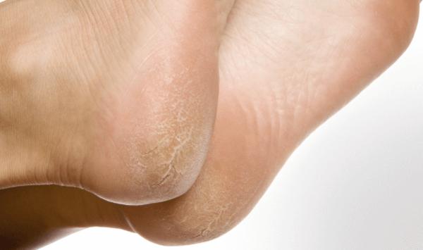 Calos e Calosidades: como se formam os calos dos pés, tipos e prevenção