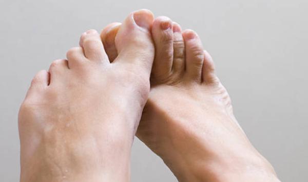 Micose dos pés: o que é, formas clínicas e tratamento