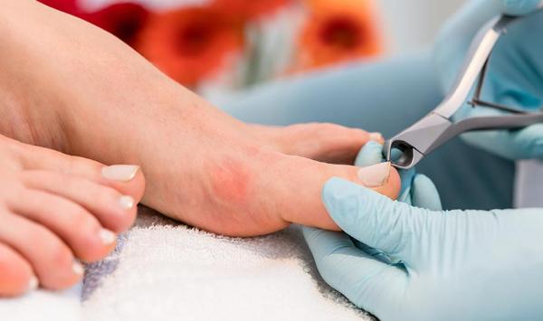 Conheça os tratamentos e saiba o que fazer com uma unha encravada